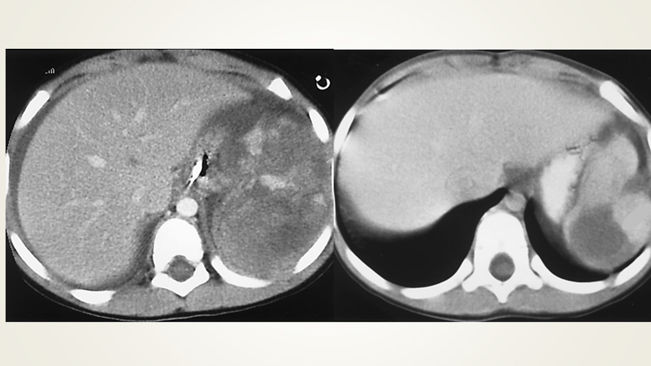 Splenictrauma in a 3-year-old boy