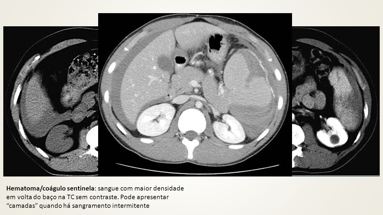 Hematoma/coágulo sentinela: sangue com maior densidade em volta do baço na TC sem contraste.