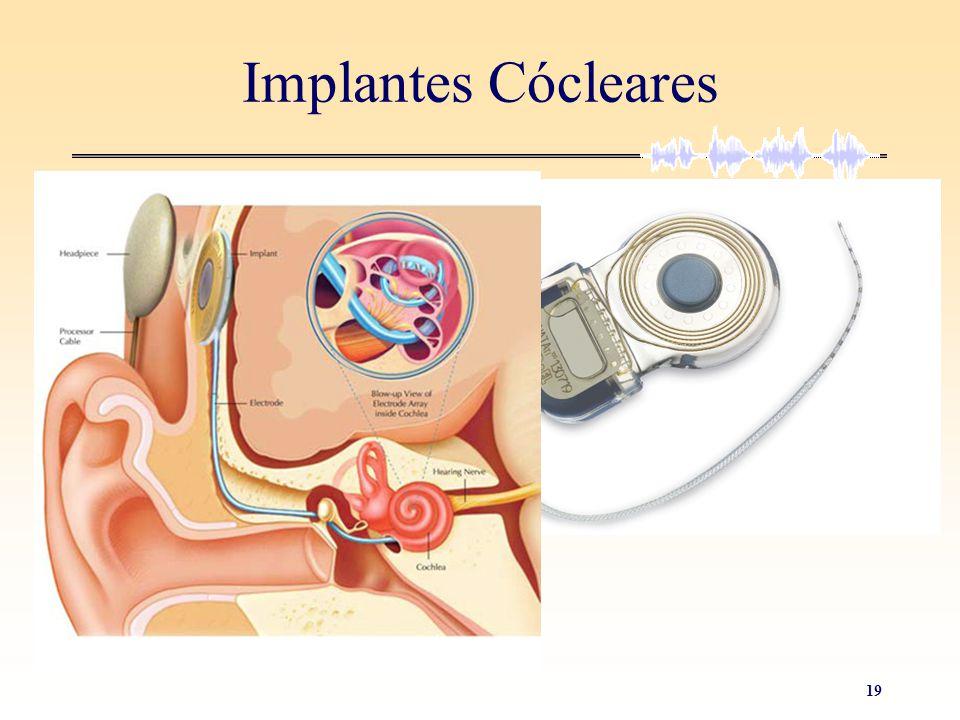 Implantes Cócleares