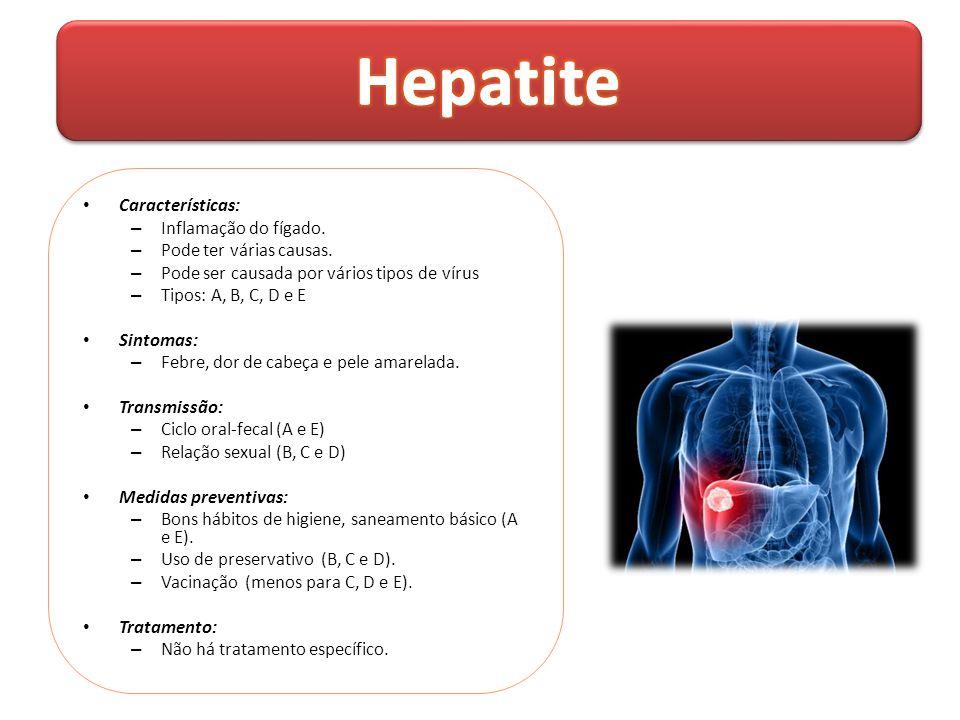 Hepatite Características: Inflamação do fígado.
