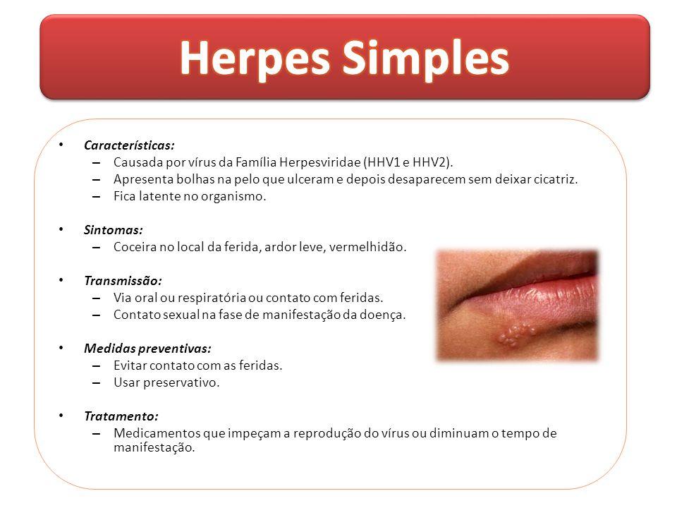 Herpes Simples Características: