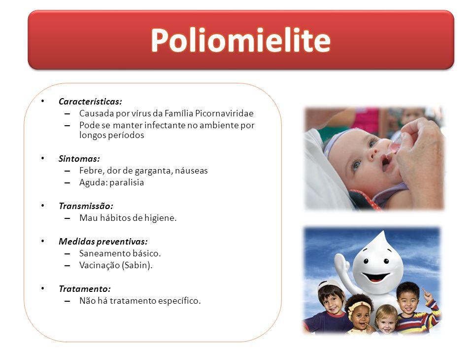 Poliomielite Características: