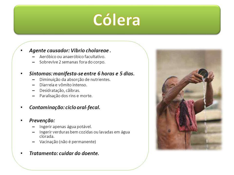 Cólera Agente causador: Vibrio cholareae .