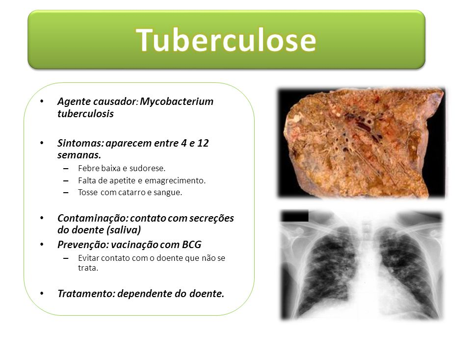 Tuberculose Agente causador: Mycobacterium tuberculosis