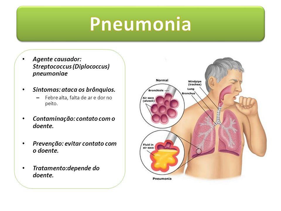 Pneumonia Agente causador: Streptococcus (Diplococcus) pneumoniae
