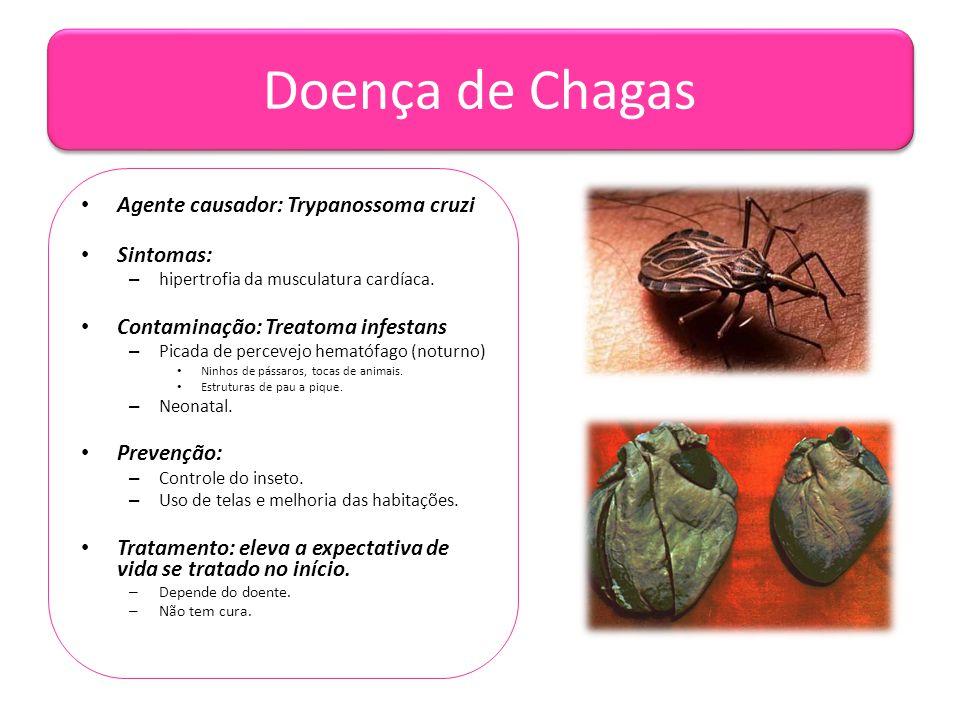 Doença de Chagas Agente causador: Trypanossoma cruzi Sintomas: