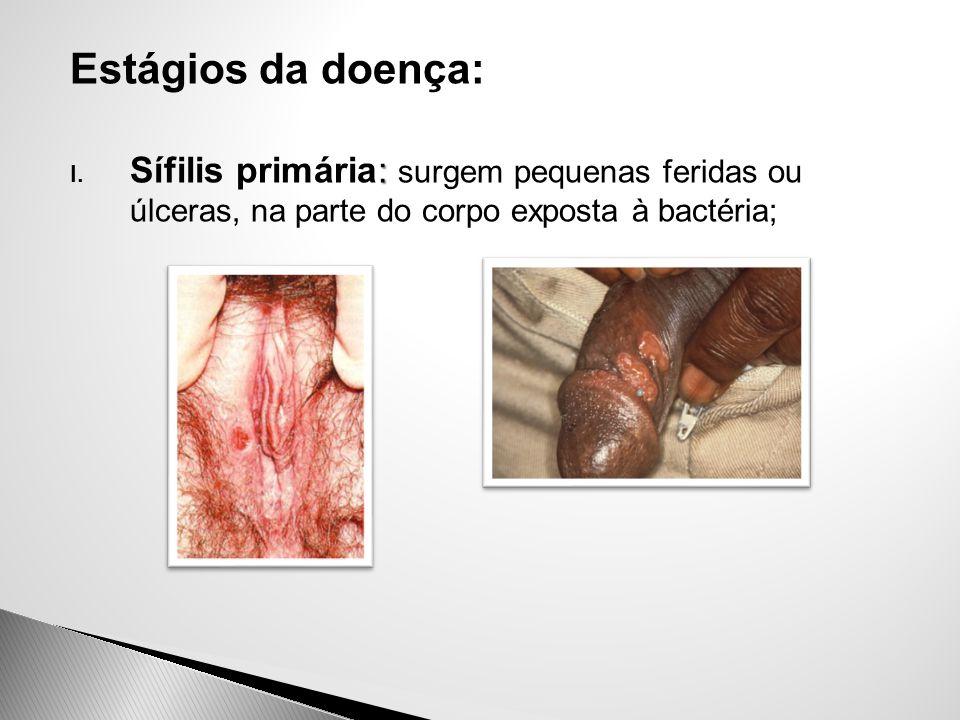 Estágios da doença: Sífilis primária: surgem pequenas feridas ou úlceras, na parte do corpo exposta à bactéria;