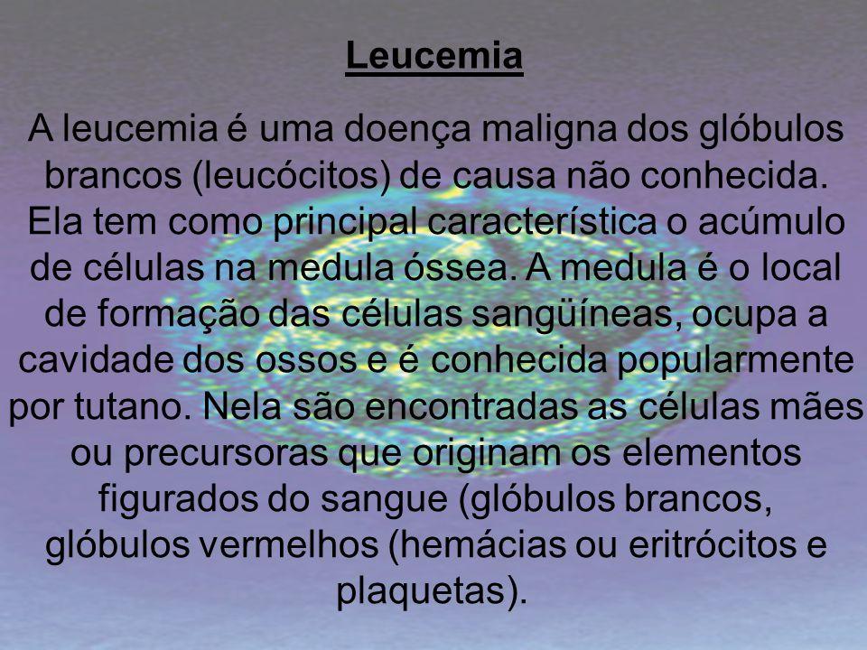 A leucemia é uma doença maligna dos glóbulos