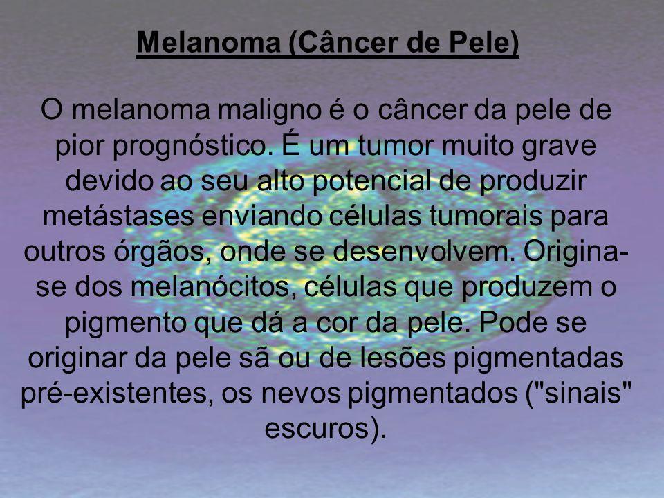 Melanoma (Câncer de Pele)