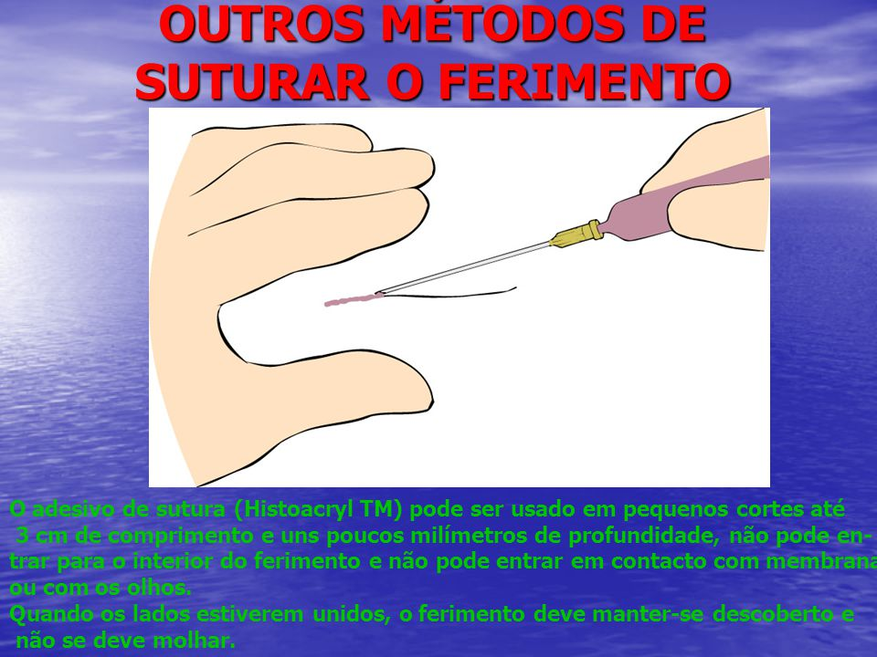 OUTROS MÉTODOS DE SUTURAR O FERIMENTO