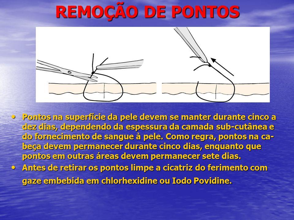 REMOÇÃO DE PONTOS