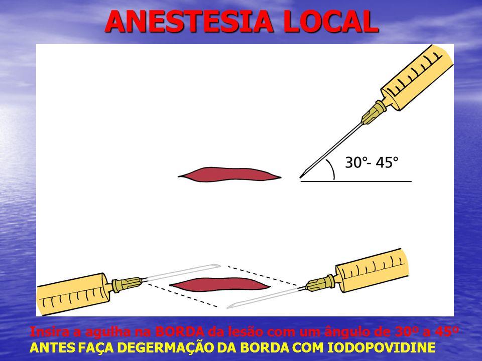 ANESTESIA LOCAL Insira a agulha na BORDA da lesão com um ângulo de 30º a 45º.