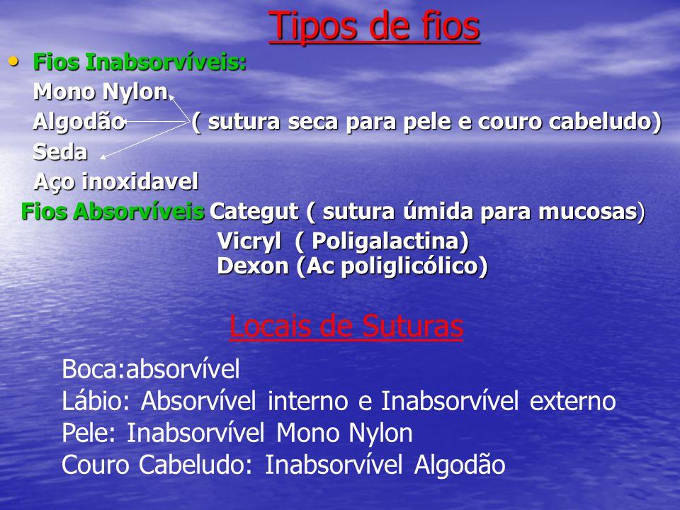 Tipos de fios Locais de Suturas Boca:absorvível