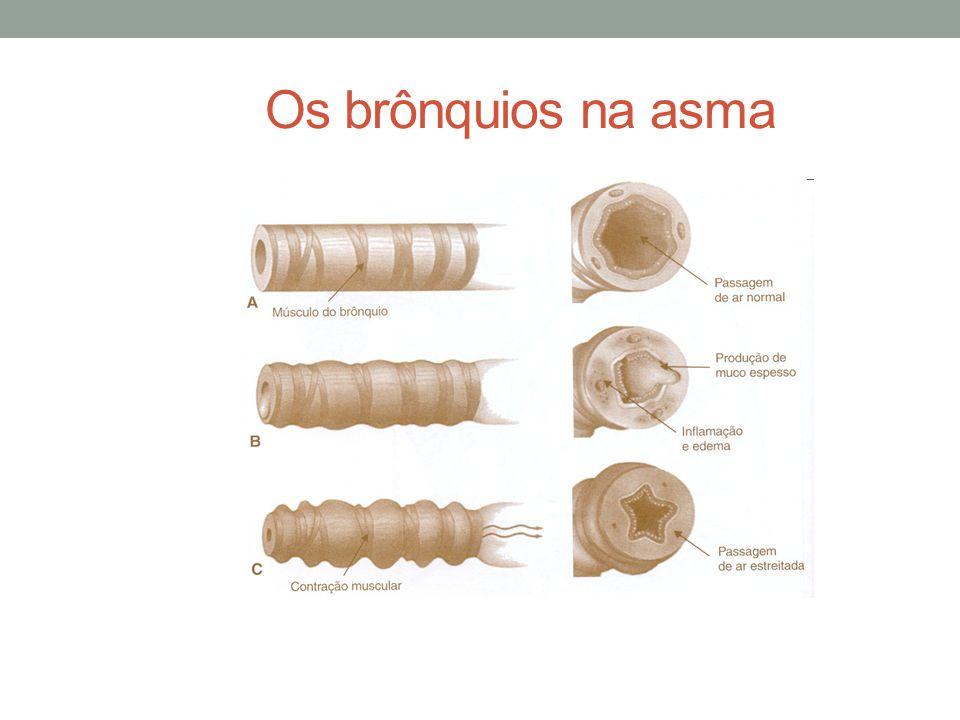 Os brônquios na asma