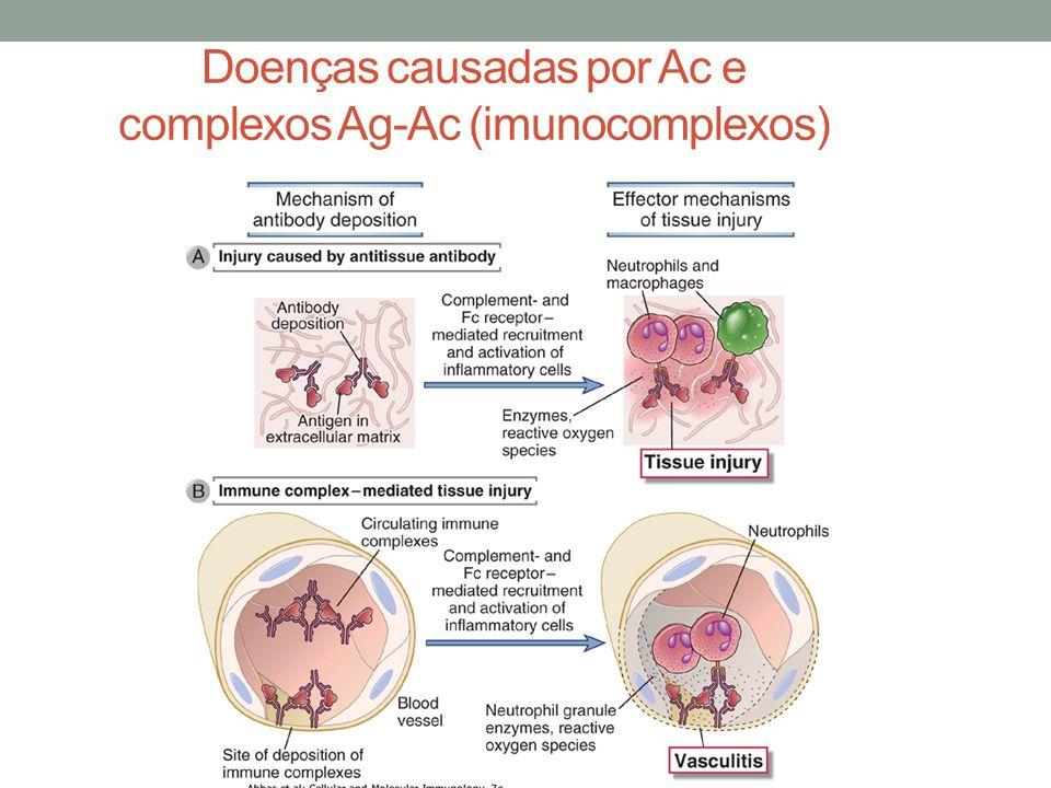 Doenças causadas por Ac e complexos Ag-Ac (imunocomplexos)