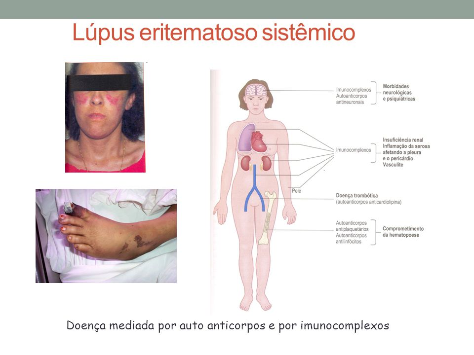 Lúpus eritematoso sistêmico