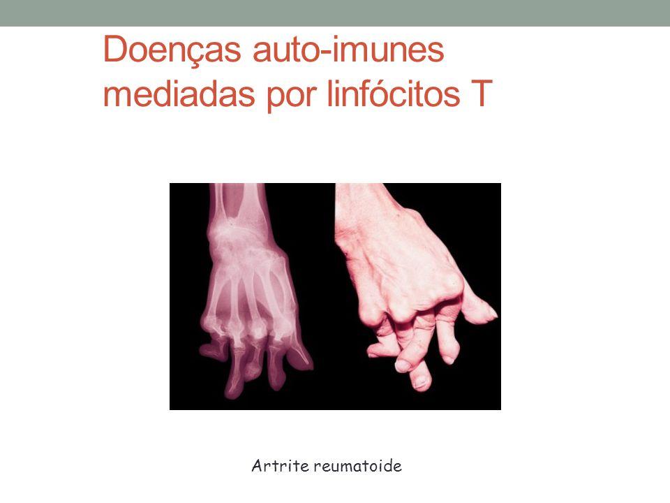 Doenças auto-imunes mediadas por linfócitos T