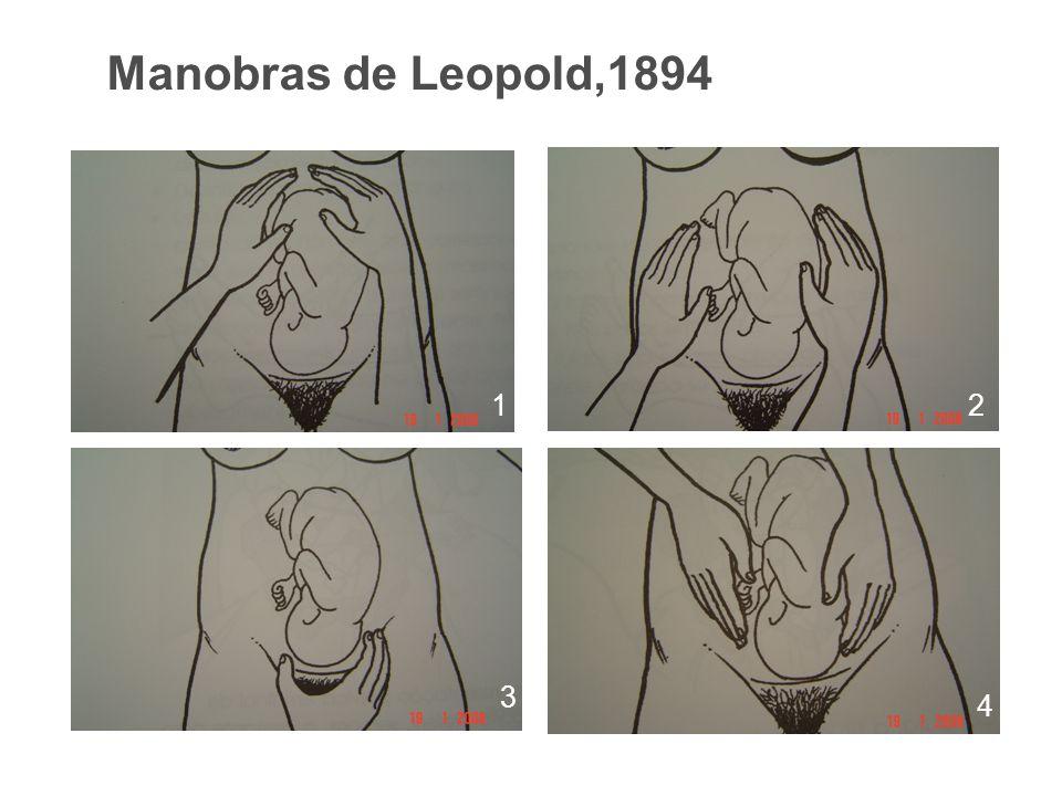 Manobras de Leopold,1894 1 2 3 4