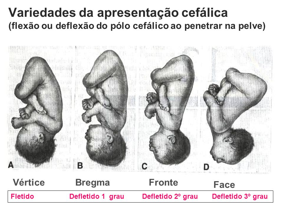 Variedades da apresentação cefálica (flexão ou deflexão do pólo cefálico ao penetrar na pelve)