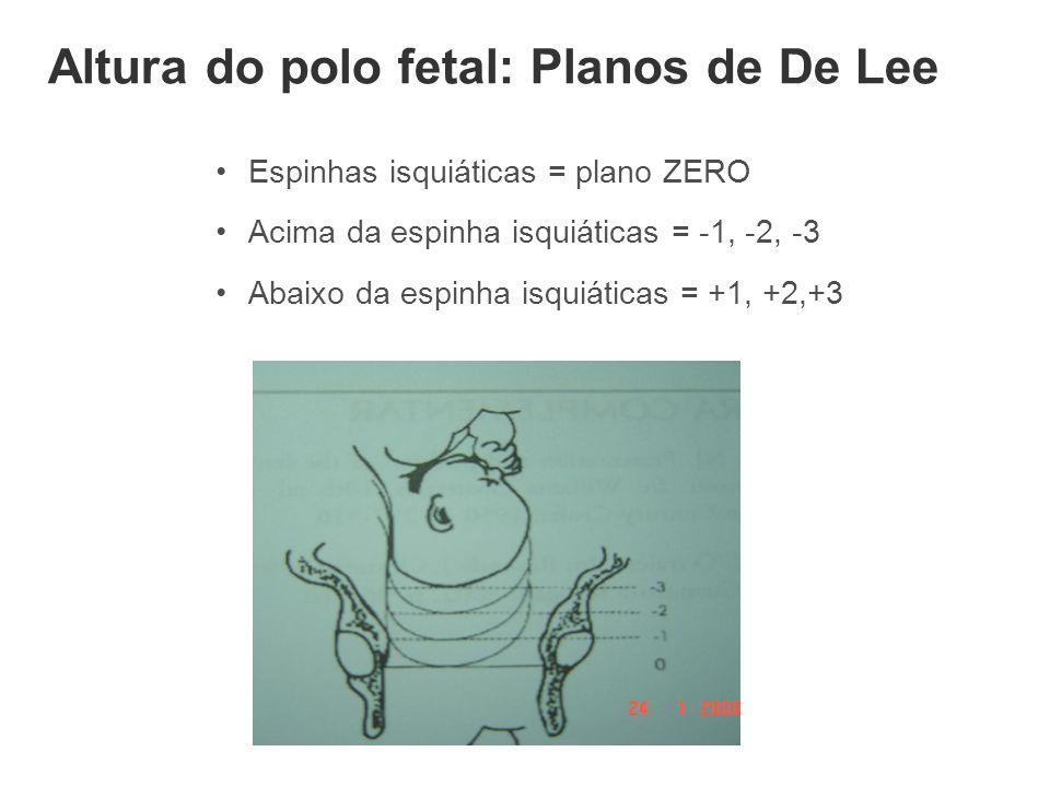 Altura do polo fetal: Planos de De Lee
