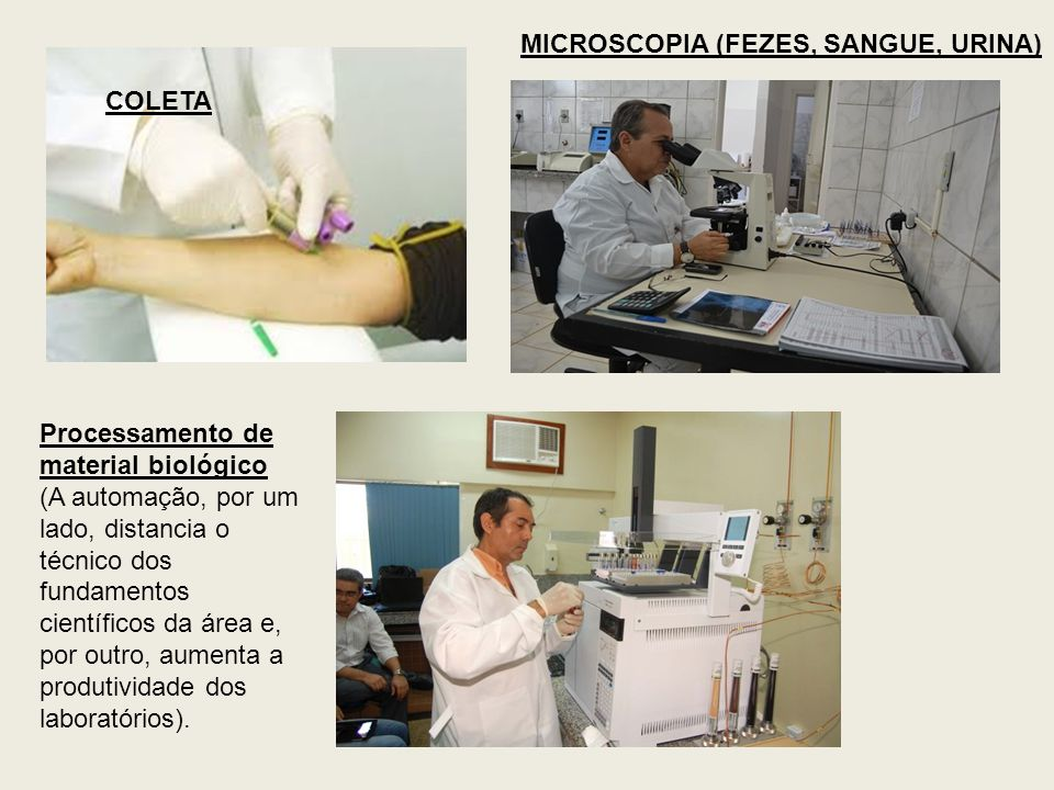 MICROSCOPIA (FEZES, SANGUE, URINA)