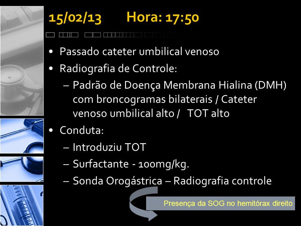 Presença da SOG no hemitórax direito