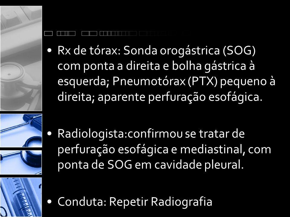 Rx de tórax: Sonda orogástrica (SOG) com ponta a direita e bolha gástrica à esquerda; Pneumotórax (PTX) pequeno à direita; aparente perfuração esofágica.