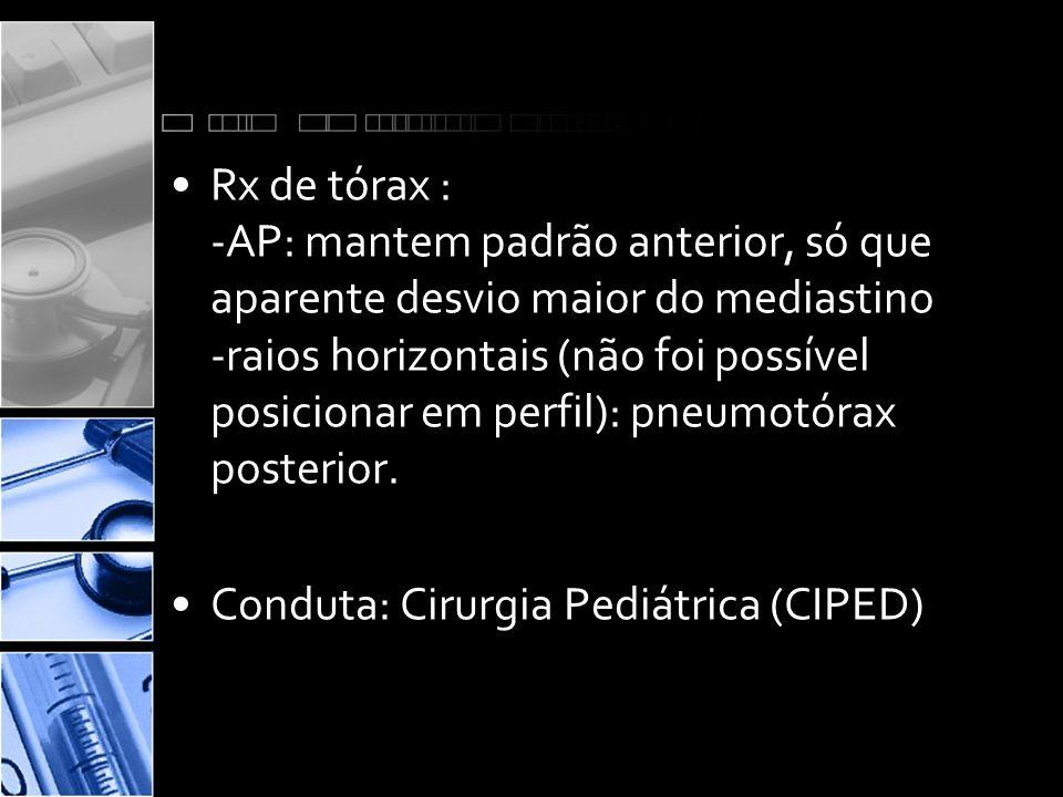 Rx de tórax : -AP: mantem padrão anterior, só que aparente desvio maior do mediastino -raios horizontais (não foi possível posicionar em perfil): pneumotórax posterior.