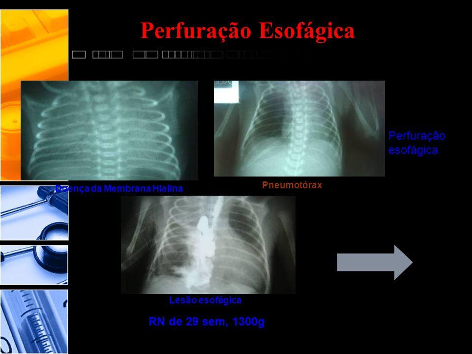 Perfuração Esofágica Perfuração esofágica RN de 29 sem, 1300g