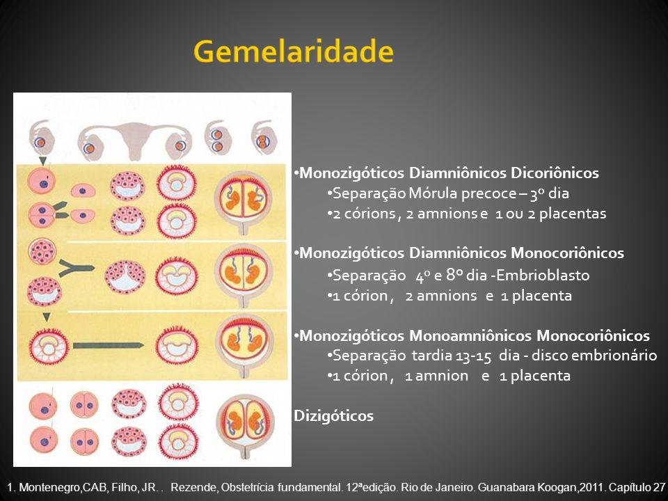 Monozigóticos Diamniônicos Dicoriônicos