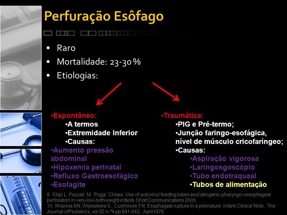 Raro Mortalidade: 23-30 % Etiologias: Espontâneo: A termos