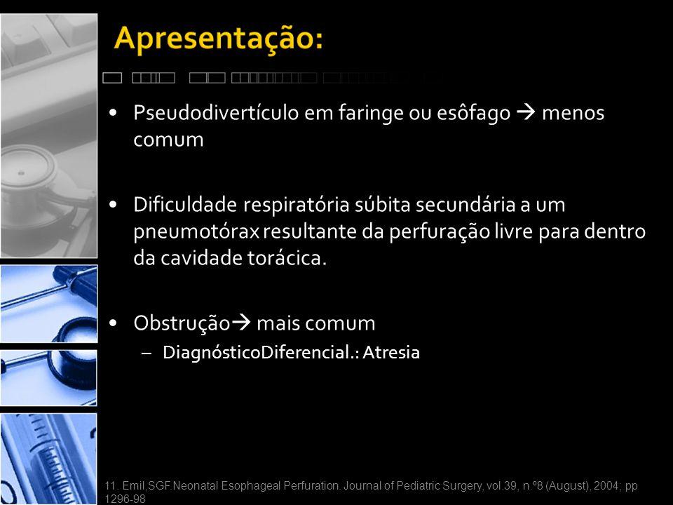 Pseudodivertículo em faringe ou esôfago  menos comum