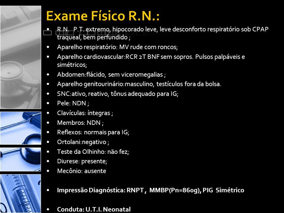 R.N. P.T. extremo, hipocorado leve, leve desconforto respiratório sob CPAP traqueal, bem perfundido ;