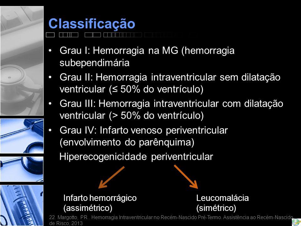 Classificação Grau I: Hemorragia na MG (hemorragia subependimária