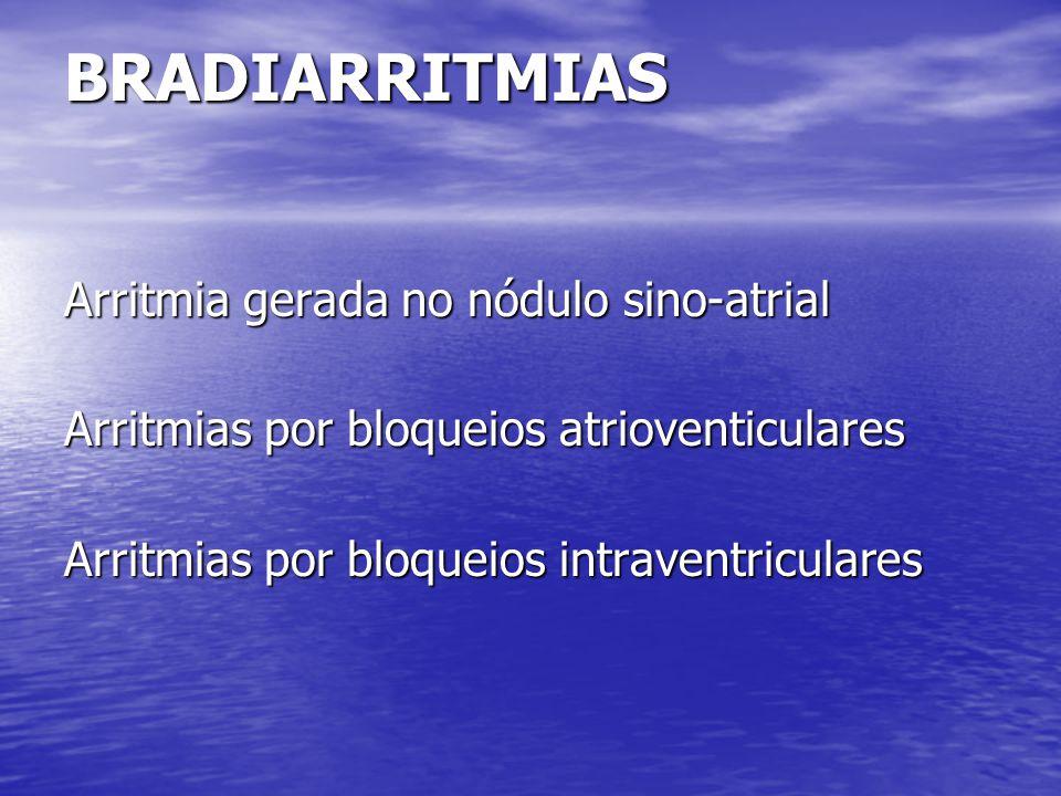 BRADIARRITMIAS Arritmia gerada no nódulo sino-atrial