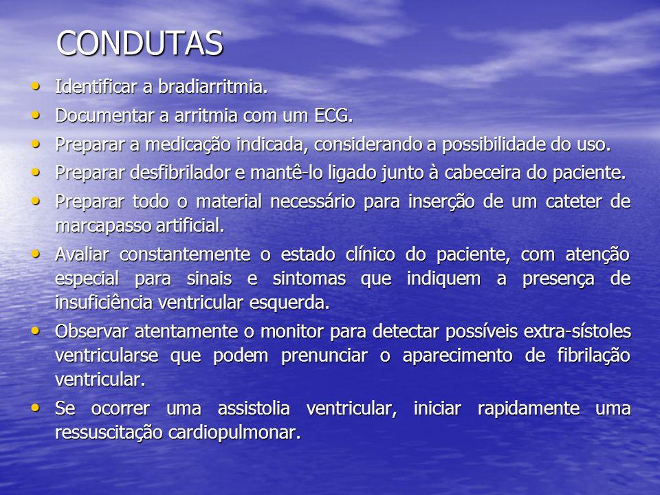 CONDUTAS Identificar a bradiarritmia.