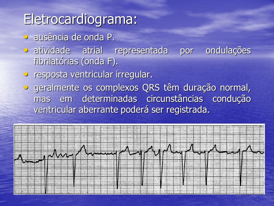 Eletrocardiograma: ausência de onda P.