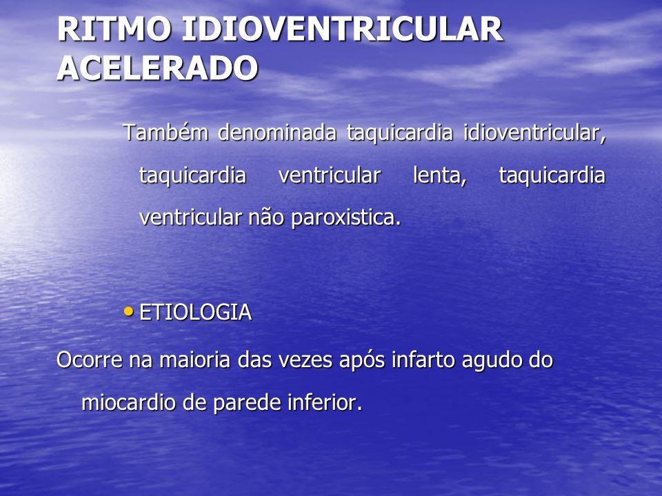 RITMO IDIOVENTRICULAR ACELERADO