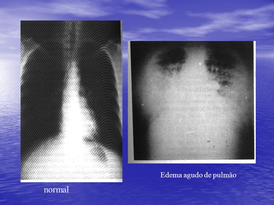 Edema agudo de pulmão normal