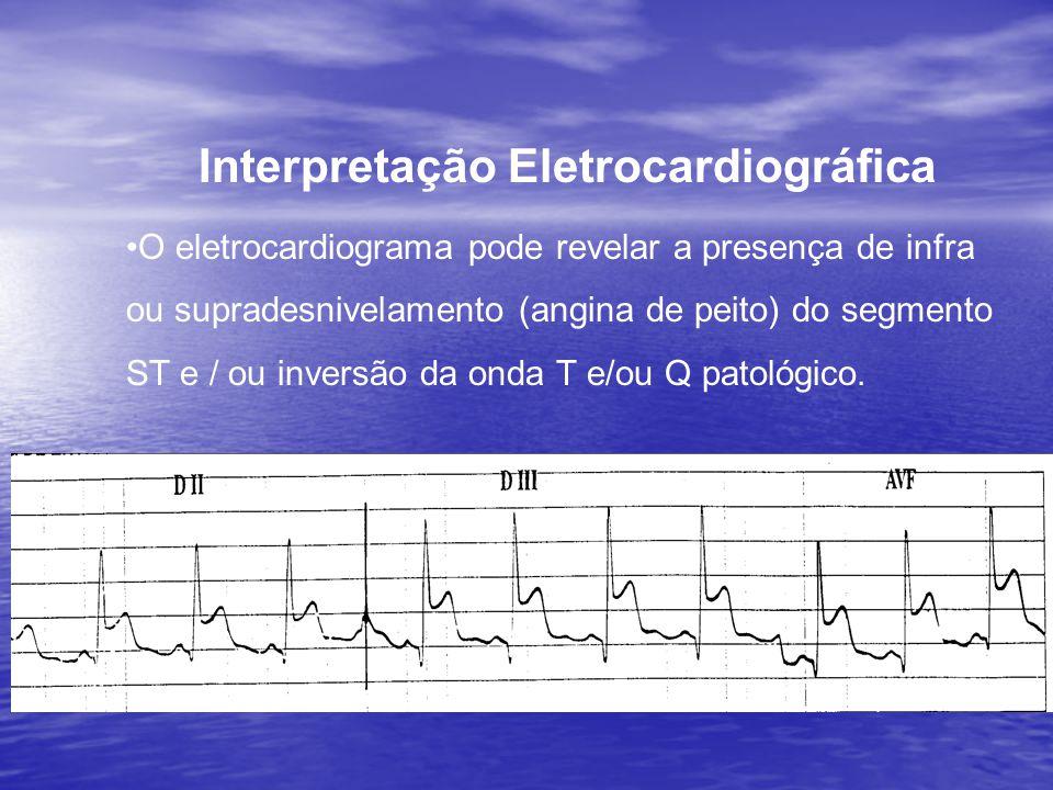 Interpretação Eletrocardiográfica