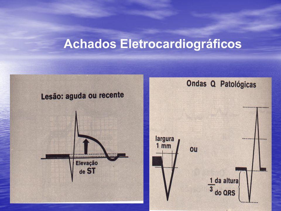 Achados Eletrocardiográficos