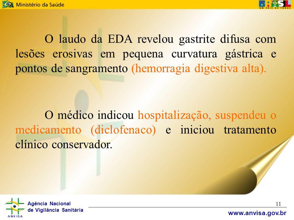 O laudo da EDA revelou gastrite difusa com lesões erosivas em pequena curvatura gástrica e pontos de sangramento (hemorragia digestiva alta).