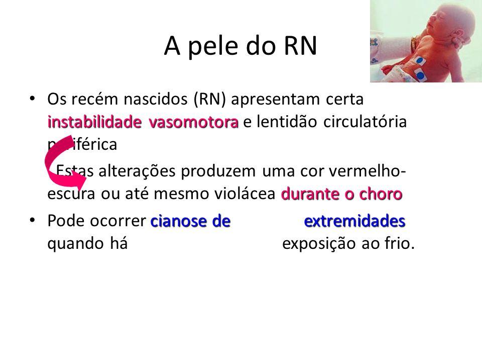 A pele do RN Os recém nascidos (RN) apresentam certa instabilidade vasomotora e lentidão circulatória periférica.