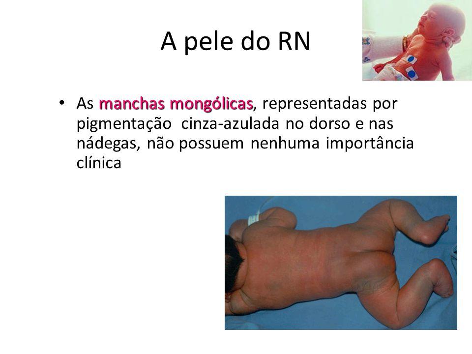 A pele do RN As manchas mongólicas, representadas por pigmentação cinza-azulada no dorso e nas nádegas, não possuem nenhuma importância clínica.