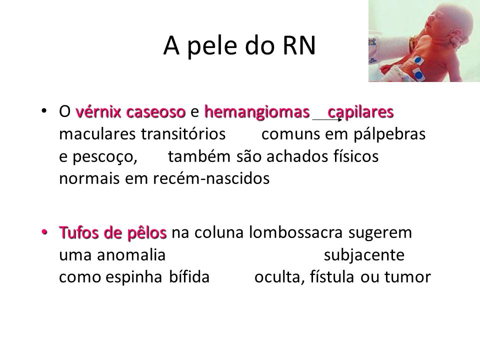 A pele do RN