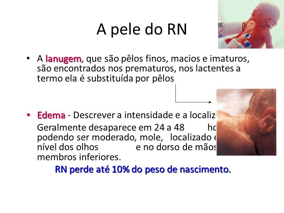 A pele do RN A lanugem, que são pêlos finos, macios e imaturos, são encontrados nos prematuros, nos lactentes a termo ela é substituída por pêlos.
