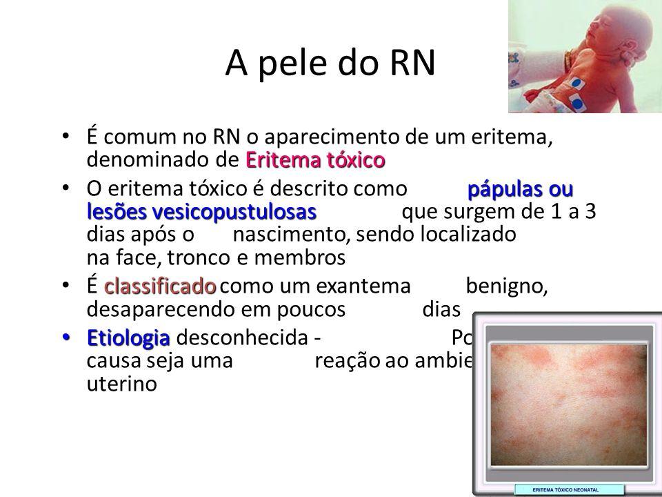 A pele do RN É comum no RN o aparecimento de um eritema, denominado de Eritema tóxico.