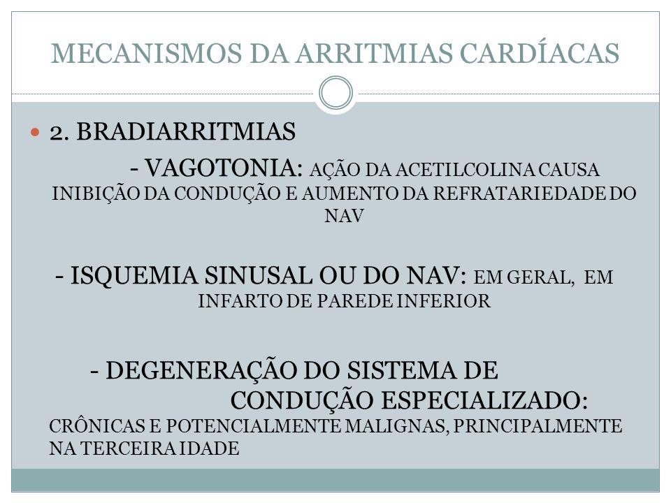 MECANISMOS DA ARRITMIAS CARDÍACAS