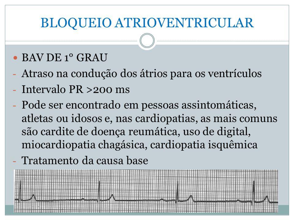 BLOQUEIO ATRIOVENTRICULAR