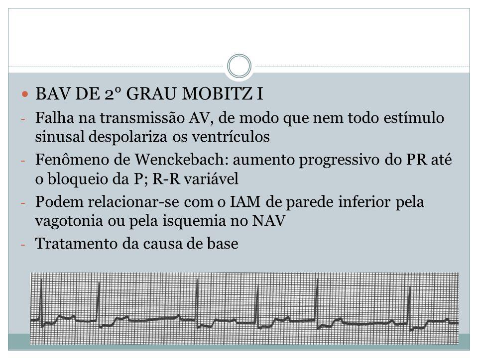 BAV DE 2° GRAU MOBITZ I Falha na transmissão AV, de modo que nem todo estímulo sinusal despolariza os ventrículos.